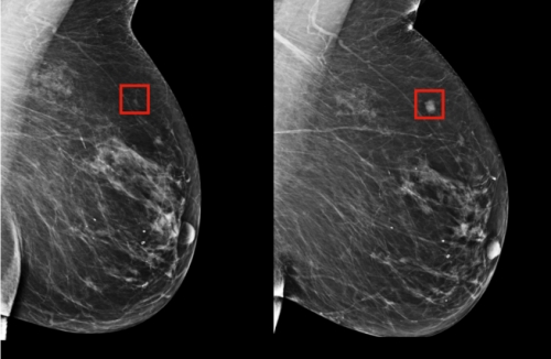 AI less likely to boob in breast exams